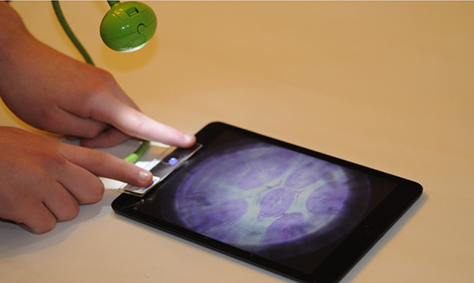 Its easy to analyse blood at home with Smart Microscope, cost less then one doller